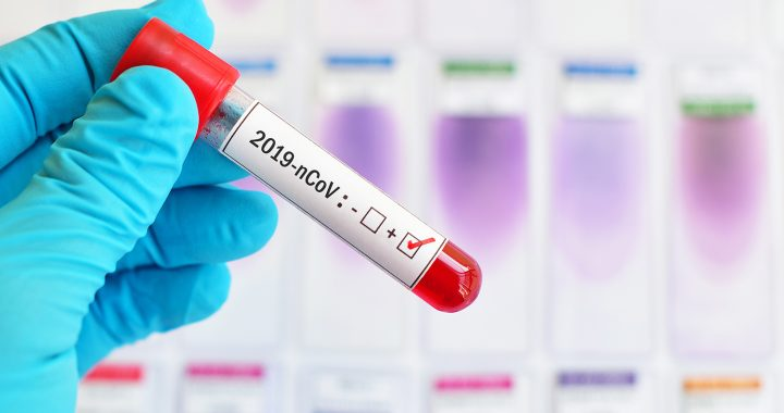 Blood sample tube positive with 2019-nCoV, novel coronavirus 201